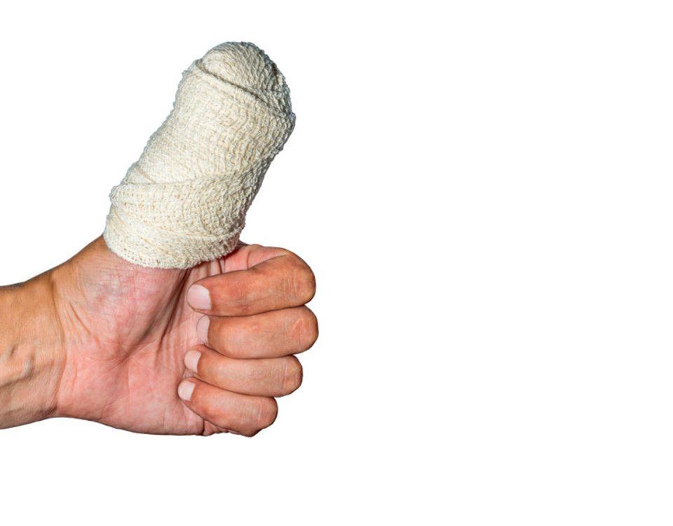 Daumen verletzt nach Unfall